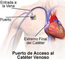 CATÉTER DE PUERTO