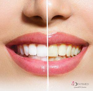 blanqueamiento-laser-dentistas-cancun