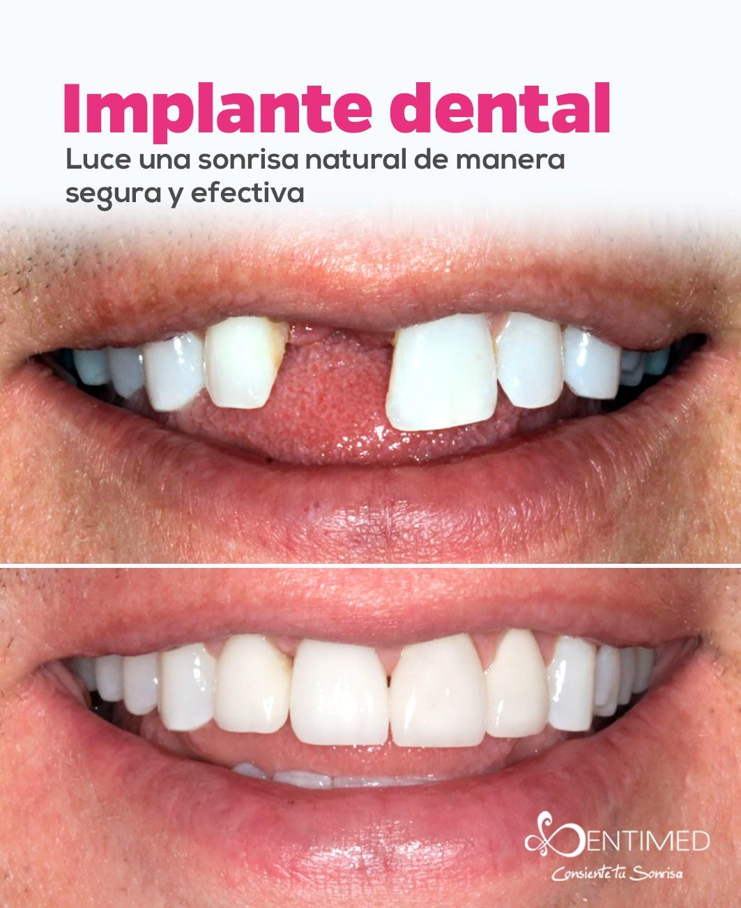 dentimed-implantes