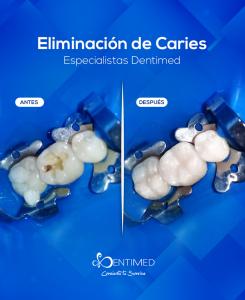 eliminacion-caries-dentistas-cancun