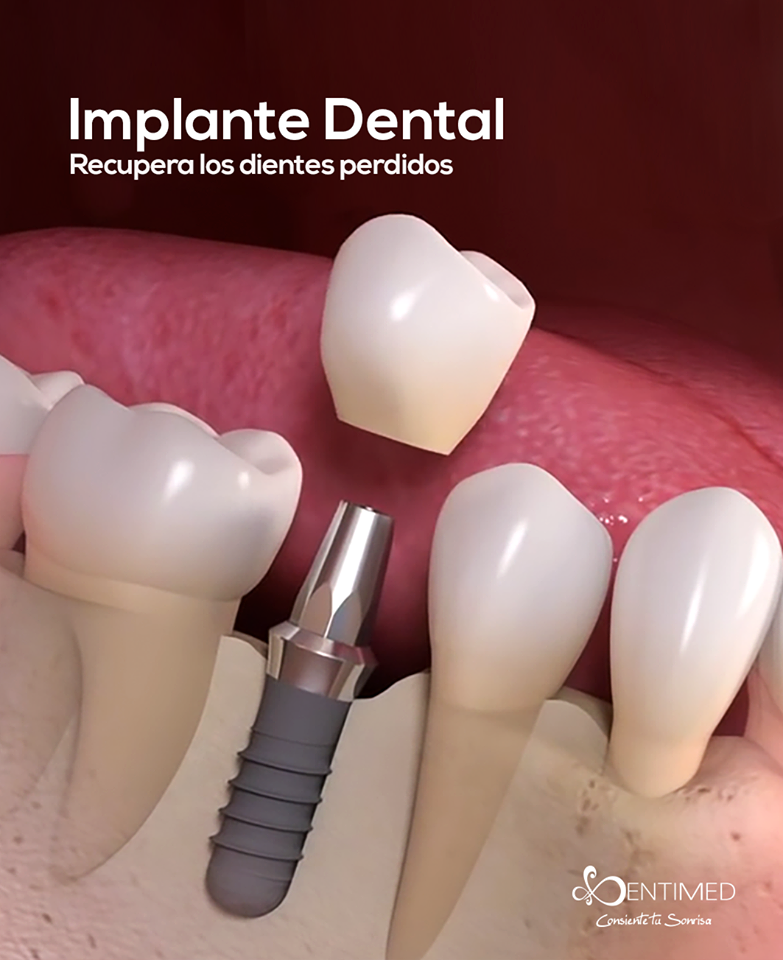 implante-dental-dentistas-cancun
