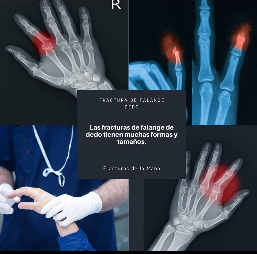 DR-JACQUES-MIKHAIL-ROSALES-TRAUMATOLOGIA (11)