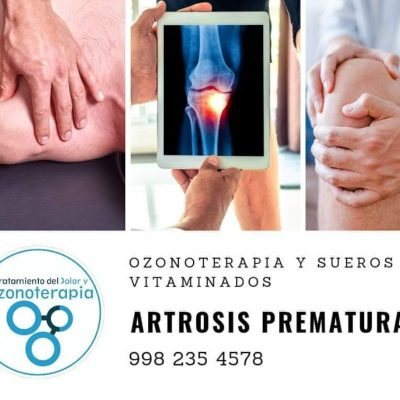Fausto Leonez Rodríguez Salgueiro-ozonoterapia-cancun (11)