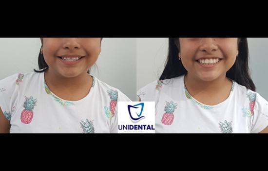 ortodoncistas-unidental-cancun