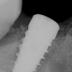 profesional-odontology-cancun (10)