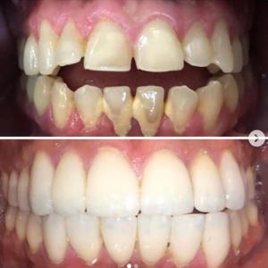 profesional-odontology-cancun (3)