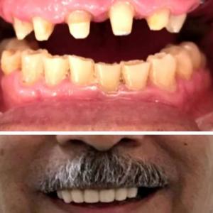 profesional-odontology-cancun (4)