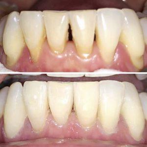 profesional-odontology-cancun (5)