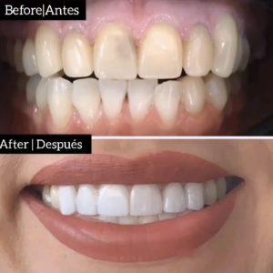profesional-odontology-cancun (6)