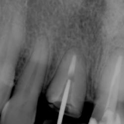 profesional-odontology-cancun (8)