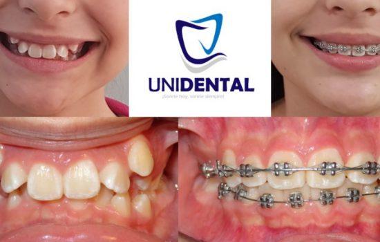 unidental (9)
